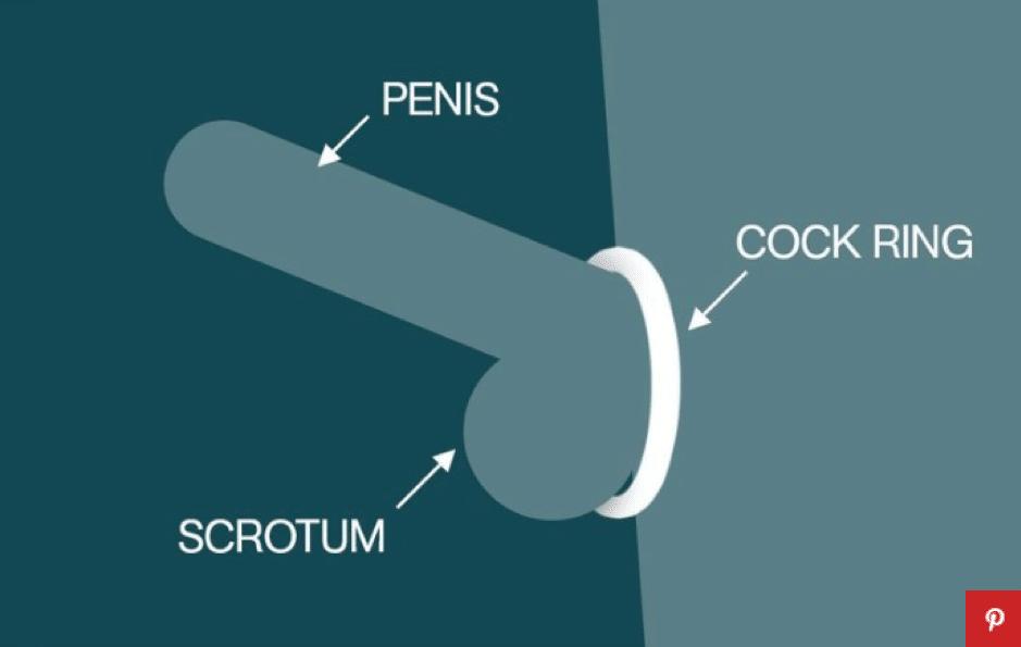 Hvad er en penisring?