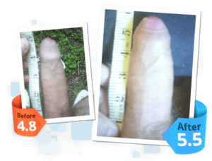 SizeGenetics before and after 1 androextender