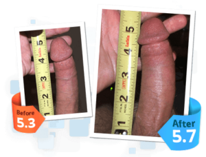 SizeGenetics before and after 2 androextender